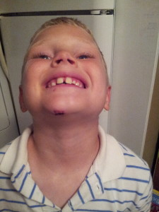 Showing off his battle wound - 3 stitches